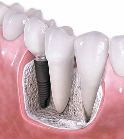 implant--