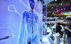 implant-rusya